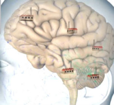Placebo Effekte und das Gehirn – psychologische Optimierung von medizinischen Behandlungen